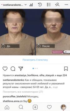 SMM (Instagram) для пластического хирурга