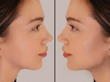 Обработка фото для клиники. До и после
