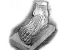 Рисунок гипсовой ноги