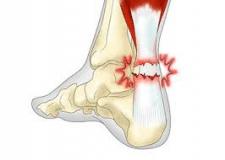 Растяжение, разрыв и надрыв сухожилия: инструкция