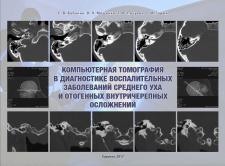 """Электронна книга """"Компьютерная томография..."""""""