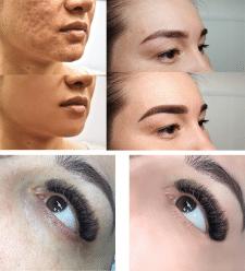 Обработка фото для косметолога