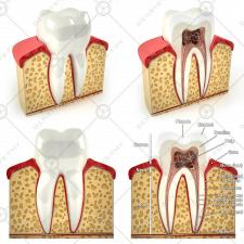 Коренной зуб в разрезе
