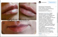 пост для Инстраграма по увеличению губ