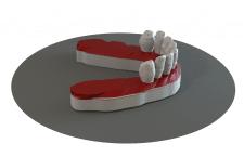 Моделювання та дослідження зубів