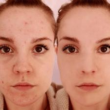 Удаление прыщей и ретушь лица