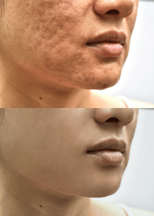 Ретушь и устранение дефектов кожи