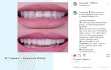 Пример поста для стоматологии veneer.dent