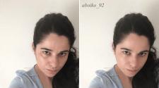 убрать мешки и красивое лицо
