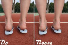 Ретушь дефектов на фото в виде точек на ногах