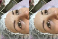 Удаление недостатков кожи