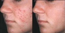 удаление дефектов  на лице