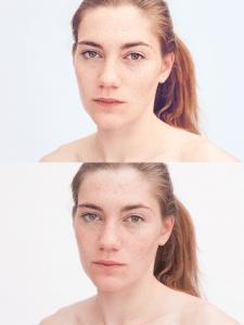 Heterochromia - 1