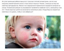 Аллергия на солнце у ребенка: симптомы и лечение
