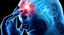 Левосторонний инсульт