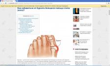 Как избавиться от бурсита большого пальца стопы?
